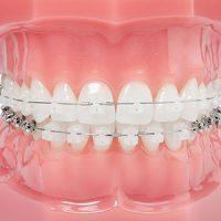 damon_clear_braces